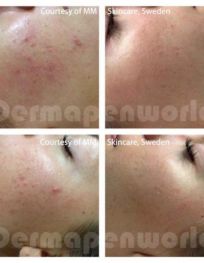 Dermapen-acne