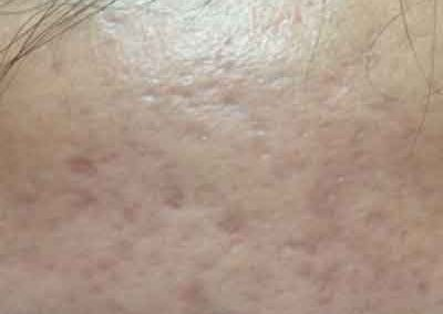 Dermapen-active-acne-after