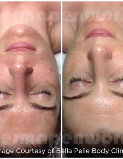 Dermapen-hyperpigmentation