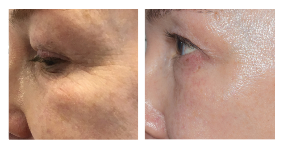 ED-eyebefore-after-4-2-months