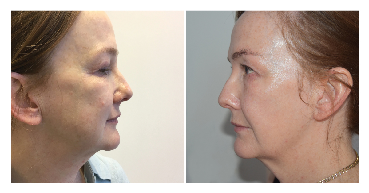 ED-profile-before-after-4-2-months