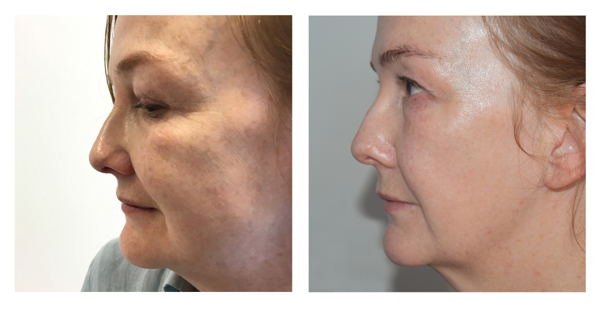 ED-profile-before-after-4