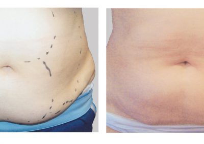 exelis-abdomen-before-after