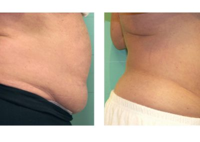 exelis-abdomen-before-and-after
