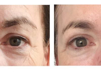 exelis-before-after-eyes