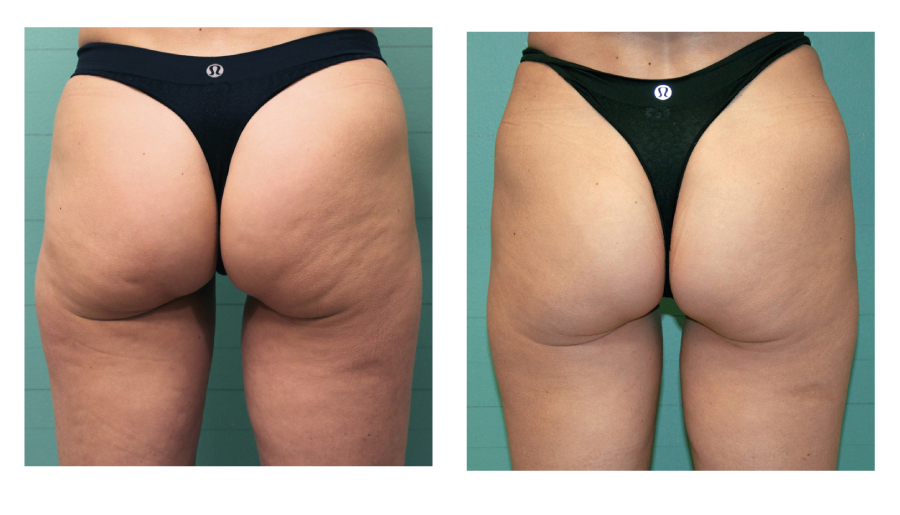 exelis-buttocks-cellulite-before-after