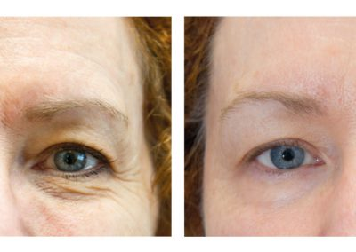 exelis-eyes-before-after