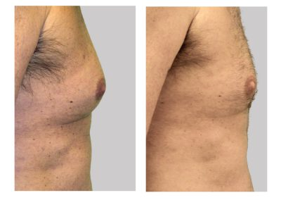 exelis-gynecomastia-manboobs-before-after