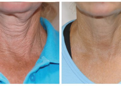 exelis-neck-before-after