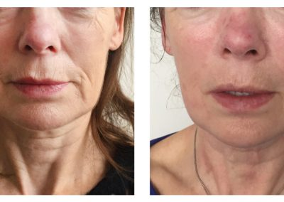 exilis--lower-face-before-after-3