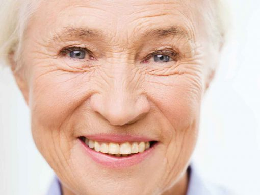 IPL for pigmentation and facial veins