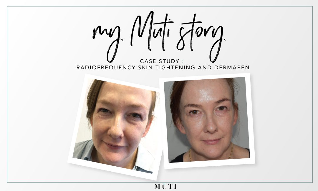 Non-surgical facelift case study radiofrequency