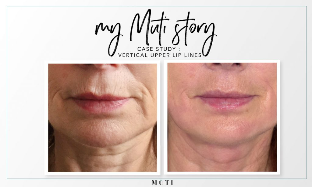 My muti story showing before and after vertical lip lines