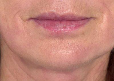 vertical-lip-lines--after-4