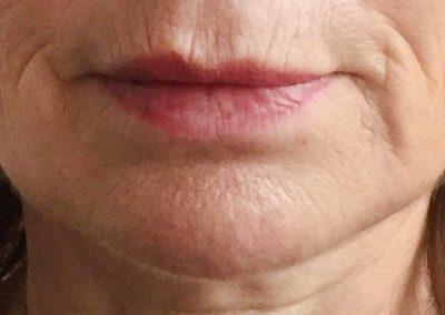 vertical-lip-lines-before