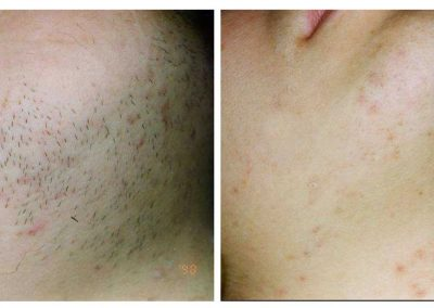 IPL-hair-removal-chin-before-and-after-3-treatments