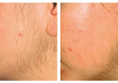 IPL-hair-removal-jaw-before-and-after-two-treatments