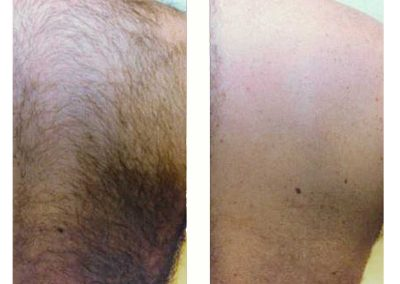 IPL-male-hair-back-before-and-after-5-treatments