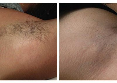 IPL-underarm-a_before-after-3-treatments