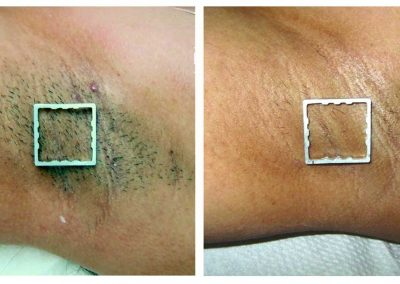 IPL-underarm-hair-removal-before-and-after-five-treatments