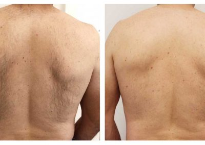 IPL_back-male-before-and-after-1-treatment