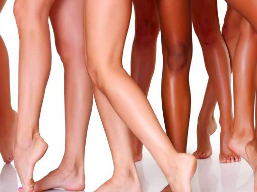 IPL hair removal permanent hair reduction
