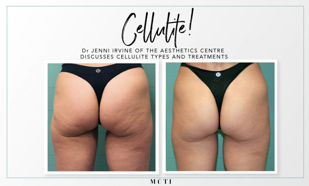Before and after buttocks treated with Exilis elite for cellulite