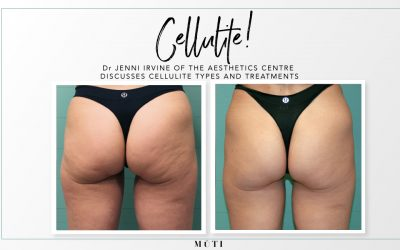 Cellulite, what is it and what can you do about it?