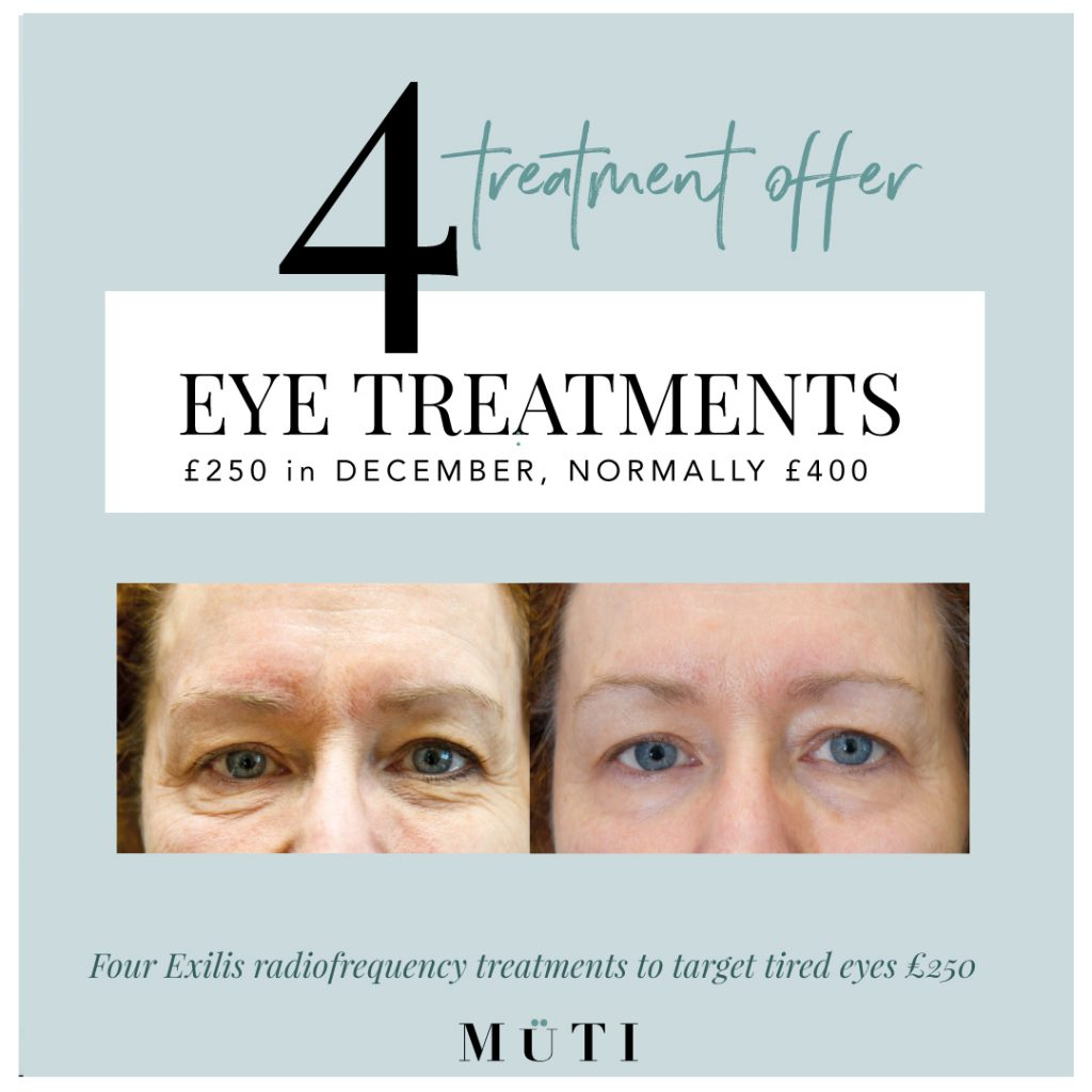 4 radiofrequency eye treatments for £250