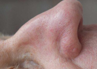 AfterIPL-telangiectasia-nose2