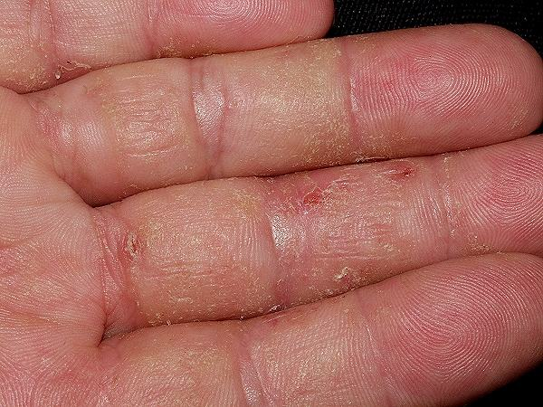 Contact_irritant_dermatitis_PCDS DW