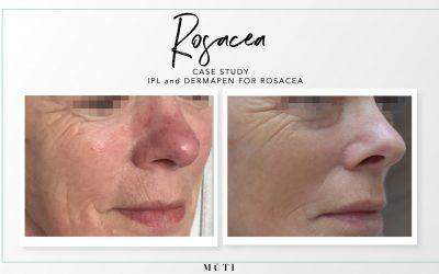 Rosacea case study