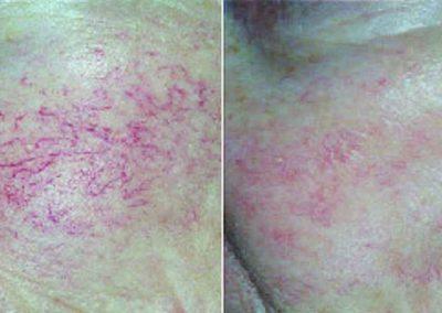 Ellipse-IPL-facial-veins