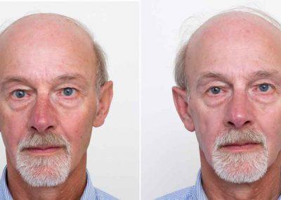 Ellipse-IPL-pigmentation-2-before-after