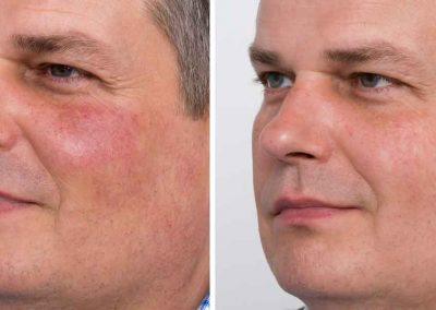 Ellipse-IPL-pigmentation-3-before-after