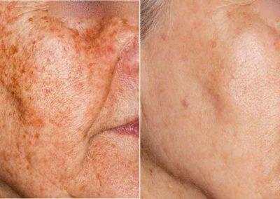 Ellipse-IPL-pigmentation-4-before-after