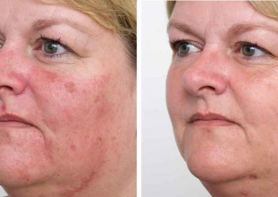 Ellipse-IPL-pigmentation-before-after