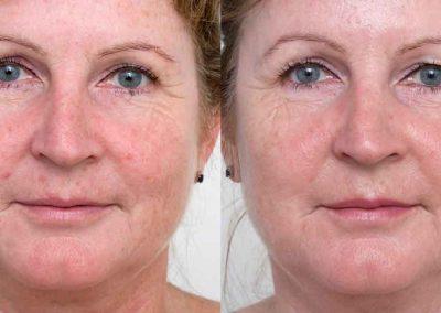 Ellipse-IPL-rejuvenation--before-after